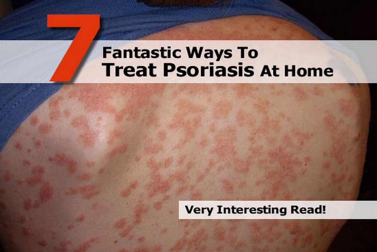 7 Fantastic Ways To Treat Psoriasis At Home