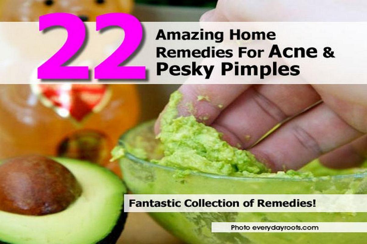 acne-pesky-pimples-everydayroots-com