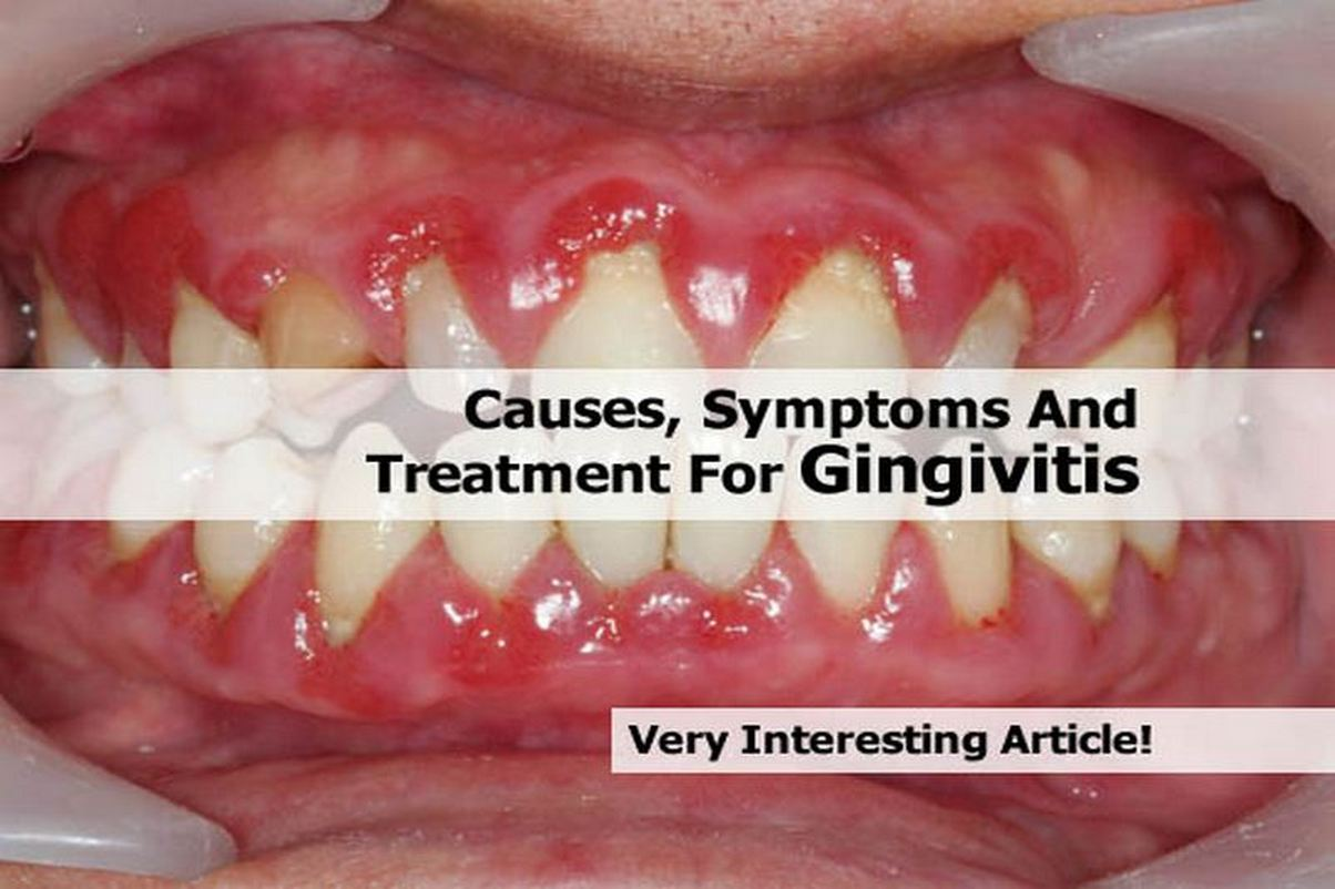 Gingivitis and Periodontitis are Common Form of Gum Disease - ABC ...
