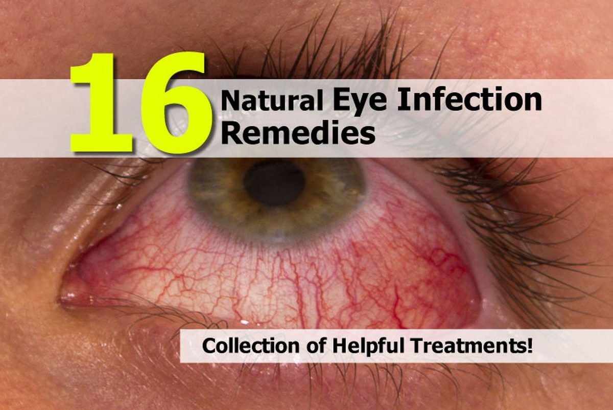 Natural Remedies Eye Infection