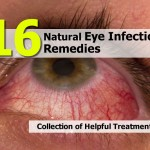 eye-infection-remedies