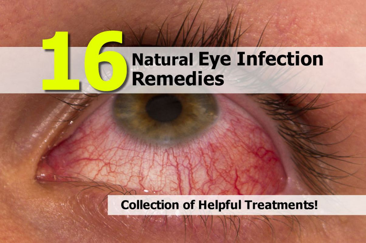 Tea Dog Eye Infection