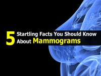 5 Startling Facts You Should Know About Mammograms
