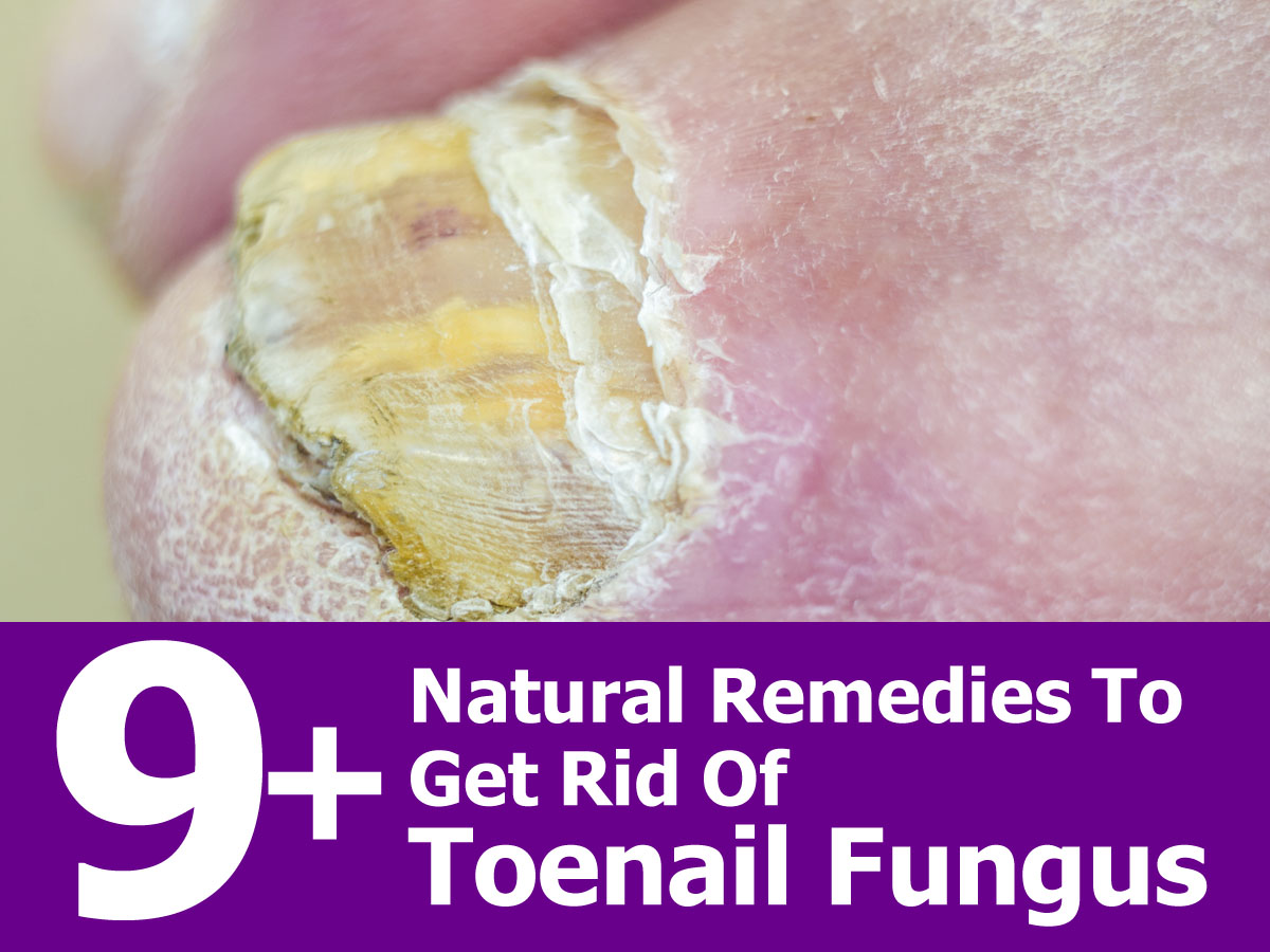 How To Get Rid Of Toe Nail Fungus