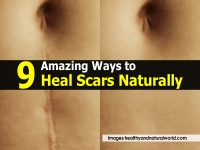 9 Amazing Ways to Heal Scars Naturally