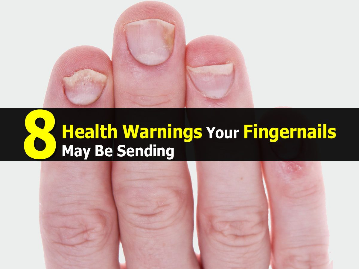 how to tell your health by your nails