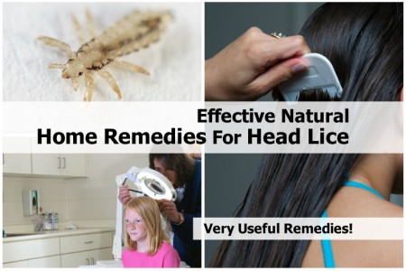 home-remedies-for-head-lice