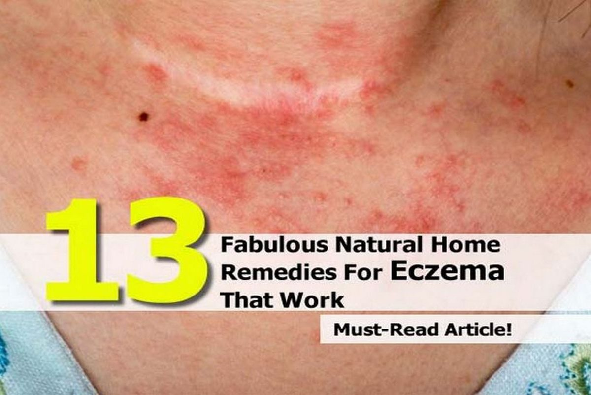 Natural Eczema Treatments That Work