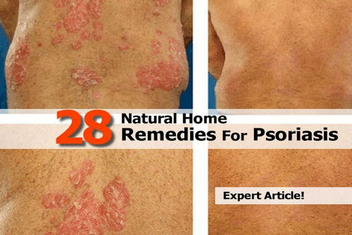 Psoriasis Natural Treatments Home Remedies