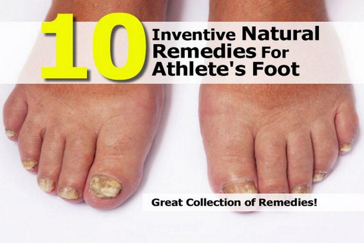 Athletes Foot Natural Cure