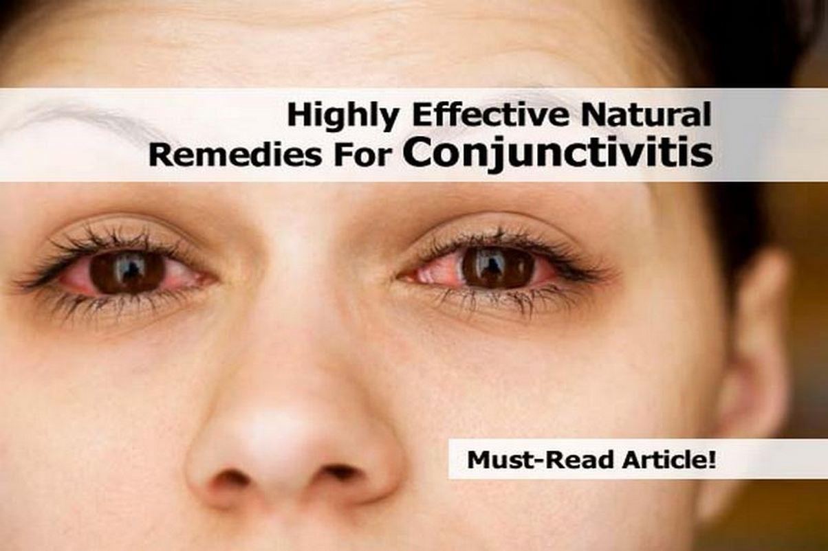 Natural Ways To Get Rid Of Conjunctivitis