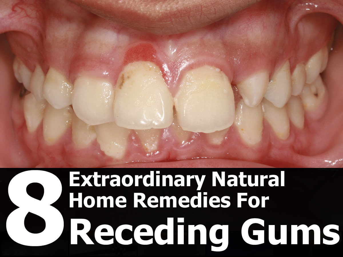 Natural Remedies For Healthy Teeth And Gums