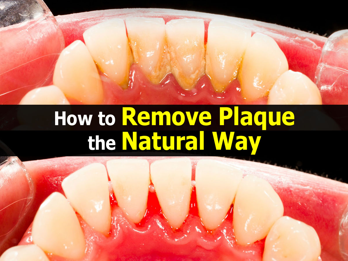 Natural Way To Remove Plaque And Tartar From Teeth