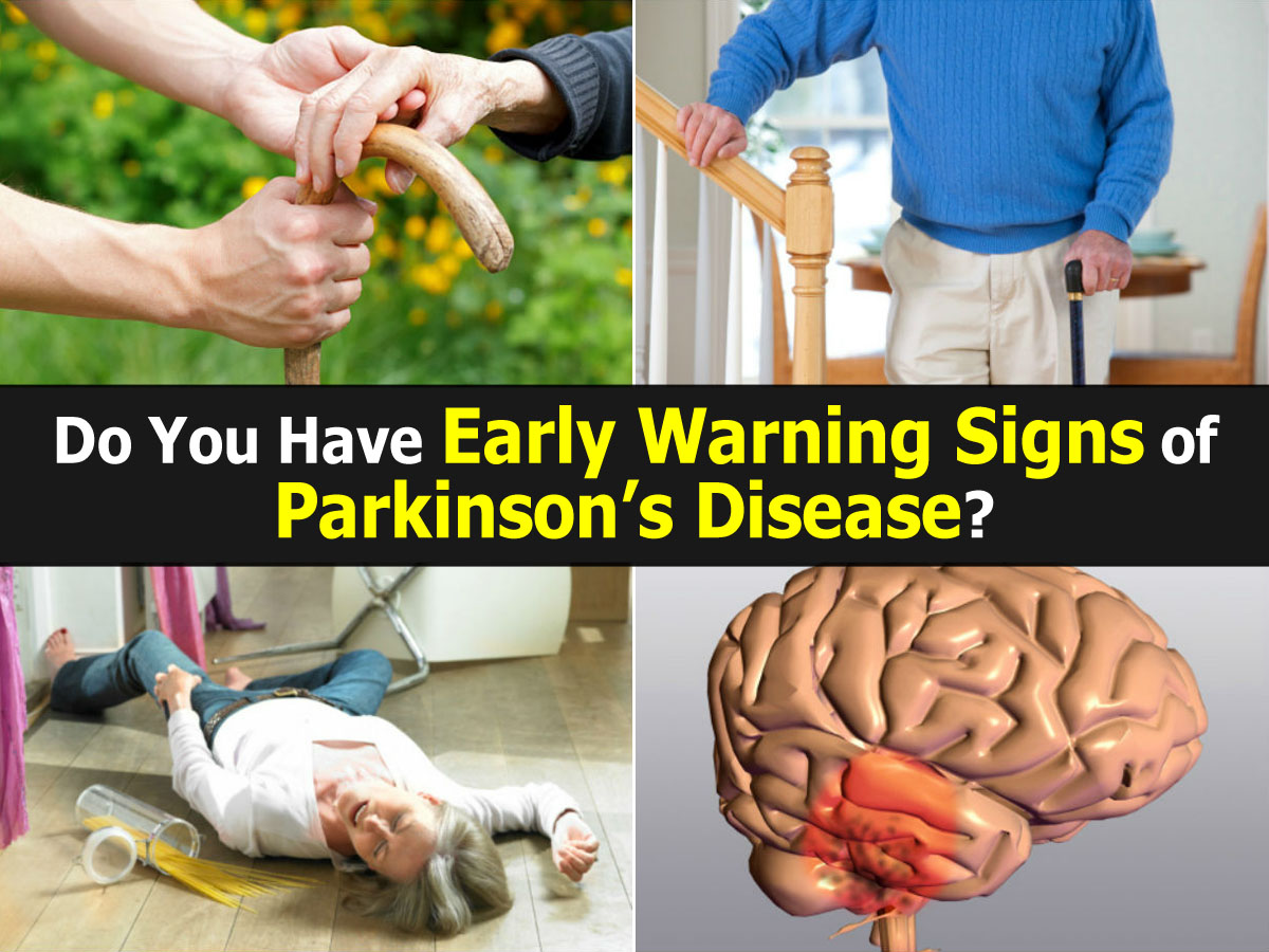 symptoms of parkinsons disease Early parkinson's disease symptoms can be hard to spot, so visit your doctor if you're experiencing any of these often-overlooked signs 8 early parkinson's disease symptoms that are too easy to miss.