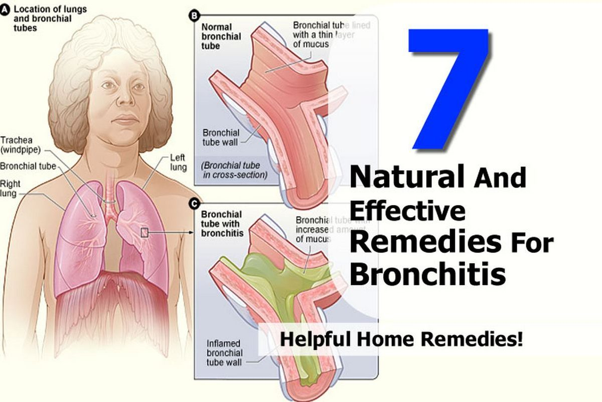 Natural Food For Bronchitis