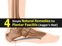 4 Simple Natural Remedies for Plantar Fasciitis (Jogger's Heel)