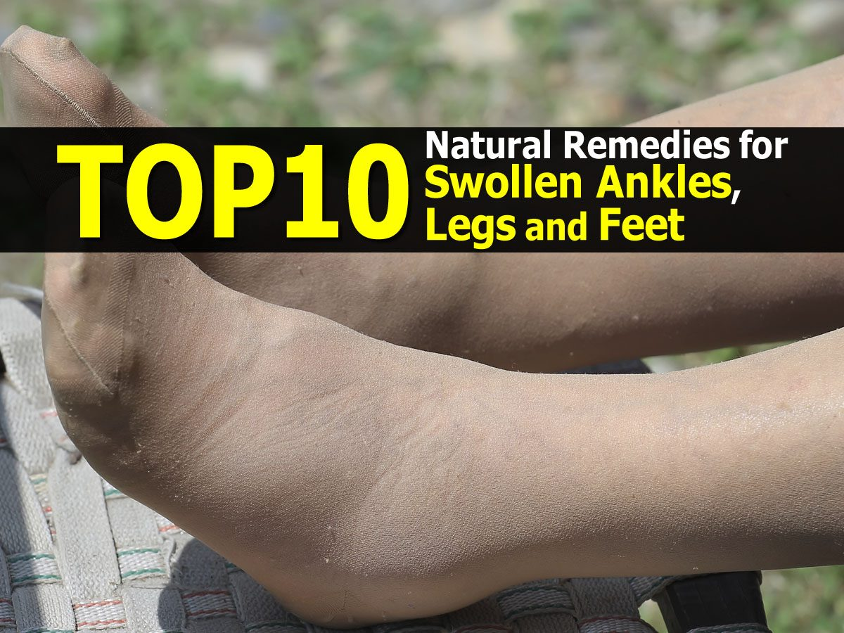 Natural Remedies For Swollen Feet And Ankles