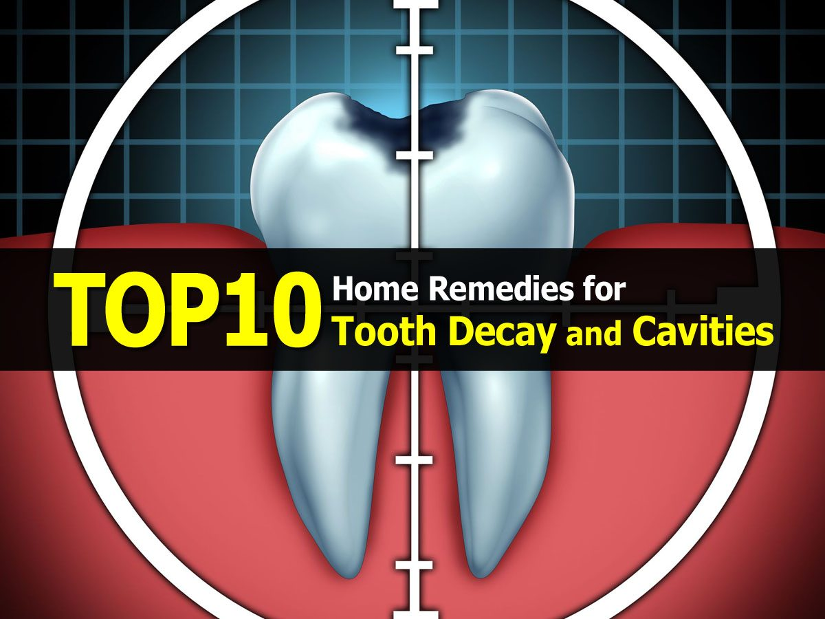 Top 10 Home Remedies for Tooth Decay and Cavities