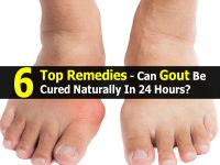 6 Top Remedies – Can Gout Be Cured Naturally In 24 Hours?