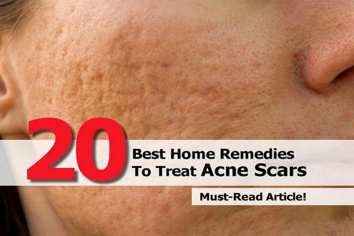 remedies-to-treat-acne-scars