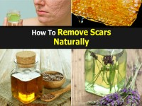 remove-scars-naturally