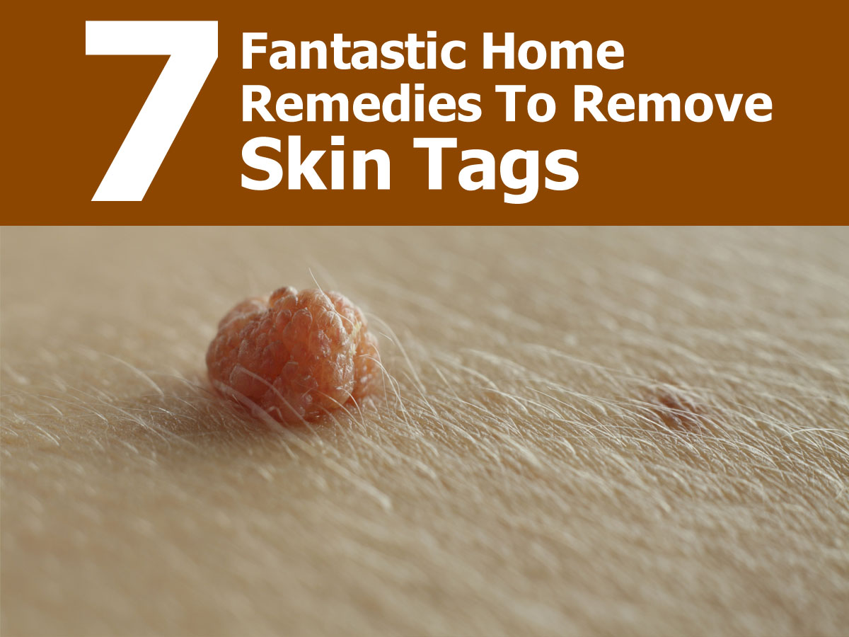 How To Safely Remove Skin Tags With Home Remedies