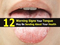 12 Warning Signs Your Tongue May Be Sending About Your Health