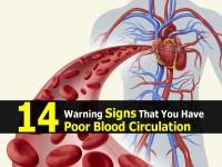 sings-have-poor-blood-circulation