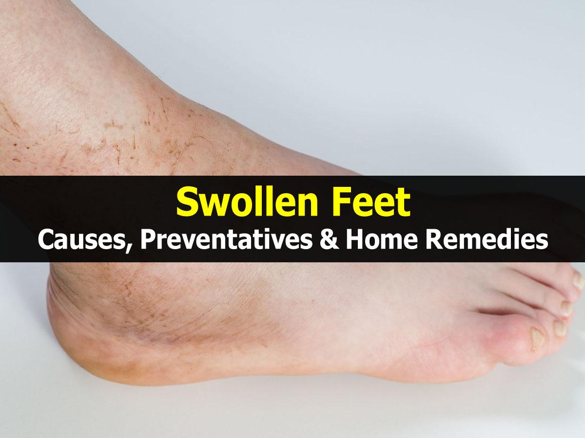 Swollen Feet Causes, Preventatives & Home Remedies