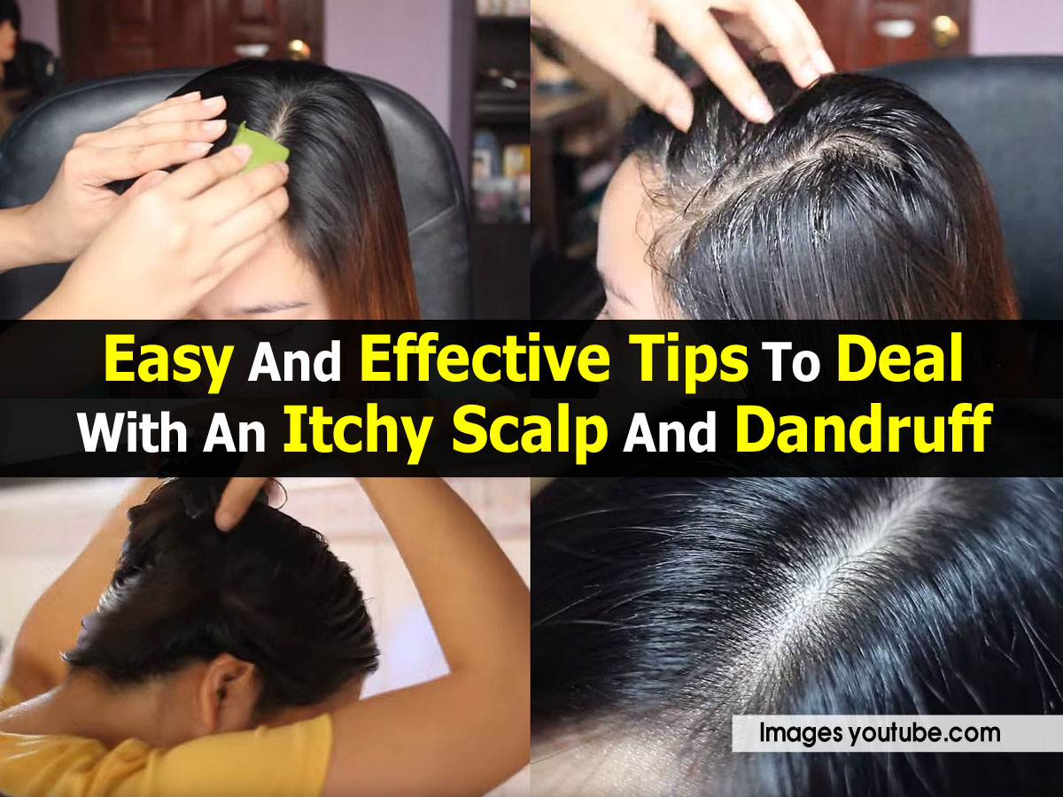 how to stop oily dandruff