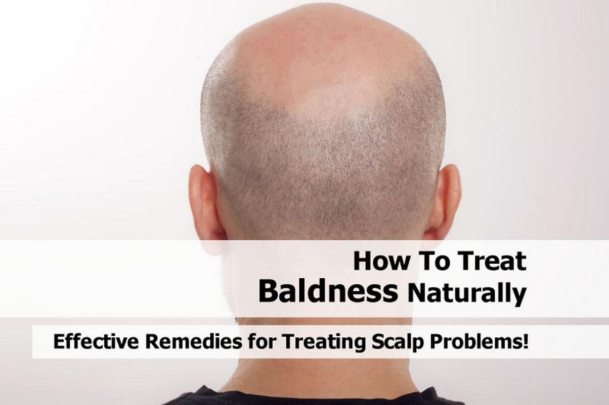 treat-baldness-naturally