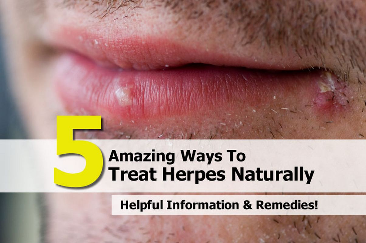 Natural Remedies To Cure Herpes Outbreak